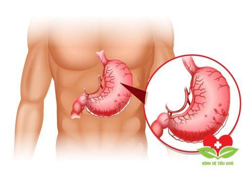 Bác sĩ điều trị xuất huyết dạ dày như thế nào?