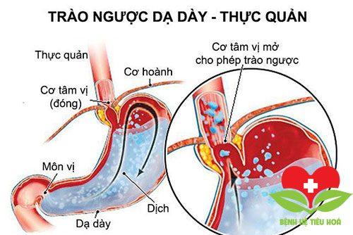 Chuyên gia lý giải những điều cần biết về bệnh viêm ruột thừa