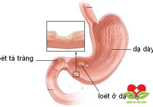 6 nguyên nhân chính khiến bạn có nguy cơ bị viêm loét dạ dày tá tràng