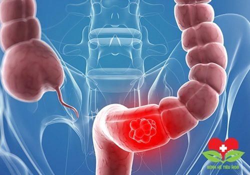 Bệnh nhân viêm đại tràng có thể gây bệnh ung thư nếu không được điều trị sớm