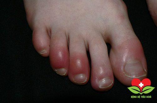 Điểm danh những căn bệnh về da sẽ lan rộng trong mùa Đông 2017