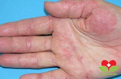 Viêm da cơ địa cũng là bệnh thường gặp trong mùa Đông này