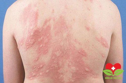 Da bị mày đay do lạnh là bệnh lý phổ biến vào mùa Đông
