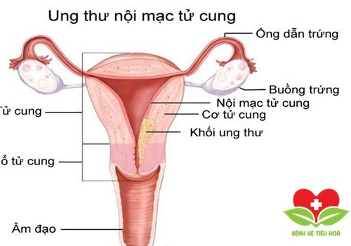 Người béo phì, thừa cân dễ bị mắc ung thư nội mạc tử cung
