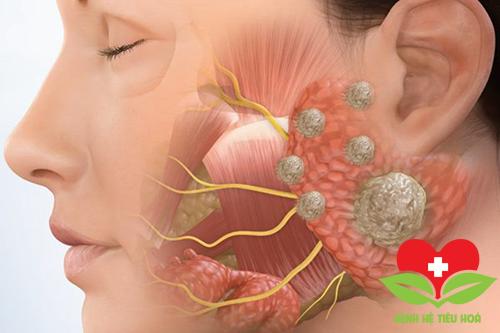 Ung thư tuyến nước bọt là gì và những điều cần biết về triệu chứng bệnh?