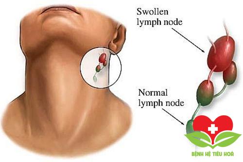 Biểu hiện của ung thư cổ họng giai đoạn đầu là gì?