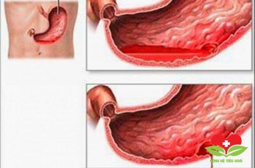 Xuất huyết dạ dày là bệnh gì?