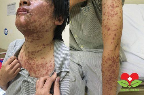 Cảnh báo: Cô gái 27 tuổi nổi mẩn đỏ vì uống thuốc chữa cảm cúm