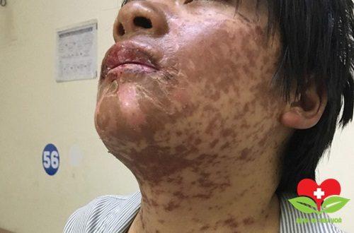 Cô gái bị dị ứng với thuốc chữa cảm cúm nhập viện vì bị mẩn đỏ khắp người