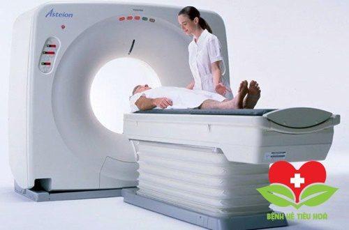 Chụp cắt lớp vi tính (CT scan) chẩn đoán ung thư miệng