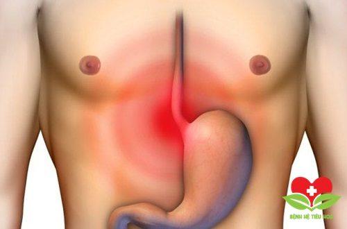 Báo động: Nhiều người bị ung thư thực quản chỉ vì thích ăn đồ nóng