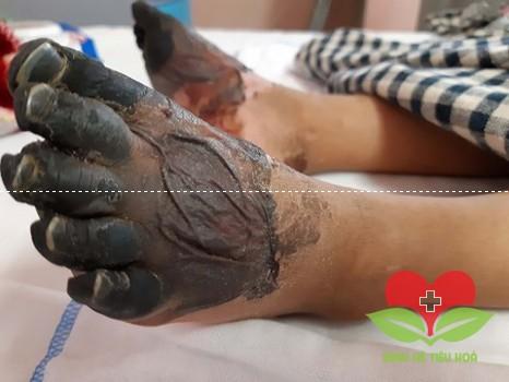Cẩn thận: Cắt bỏ tứ chi chỉ vì một vết xước nhỏ trên da