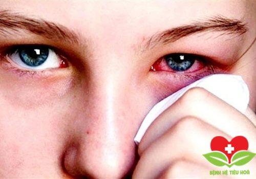 Nguyên tắc cơ bản trong điều trị phỏng mắt chuẩn Bộ Y tế