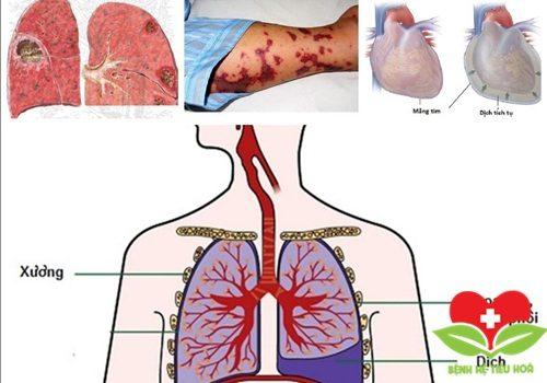 Lý giải: Tràn dịch màng phổi là bệnh gì?