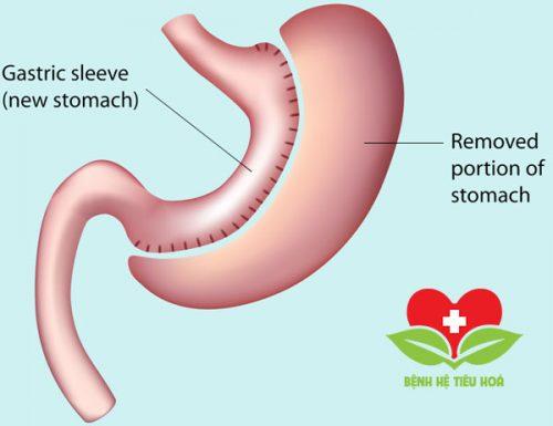 triệu chứng của hội chứng Dumping thường xảy ra ngay sau khi ăn