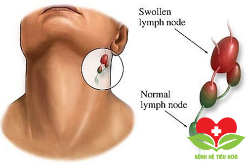 Bệnh nhân ung thư vòm họng giai đoạn đầu